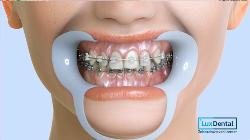 zobni-aparat